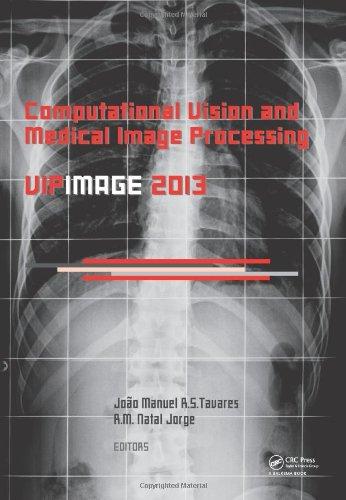 Biomedical Image Processing Ebook